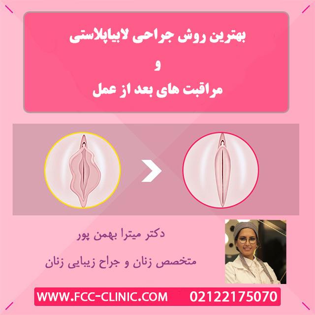قبل و بعد از جراحی لابیاپلاستی