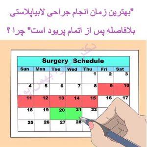 بهترین زمان انجام جراحی لابیاپلاستی بعد از پریود است