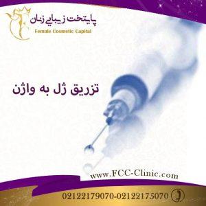 تزریق ژل به واژن برای جوانسازی واژن
