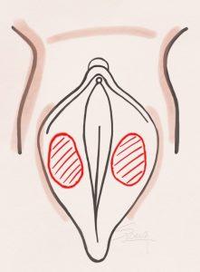 لابیاپلاستی به روش لابیاپلاستی به روش De-epithelialization