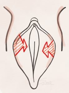 لابیاپلاستی به روش z plasty