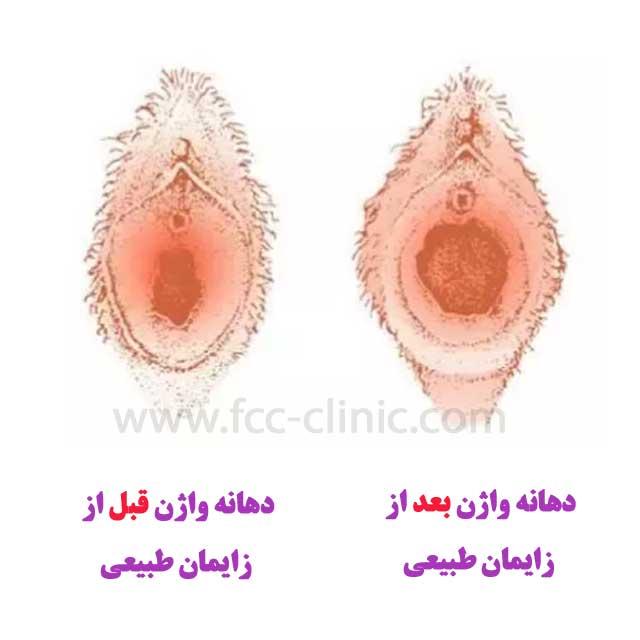 تنگ کردن واژن بعد از زایمان طبیعی