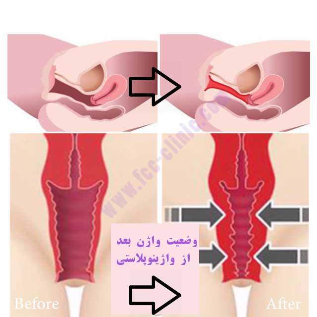 عکس واژن بعد از واژینوپلاستی