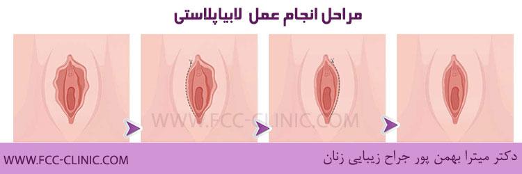 مراحل انجام عمل لابیاپلاستی